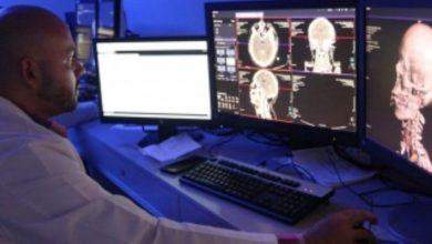 Photo of Descubren papel clave de la respiración en la oxigenación del cerebro